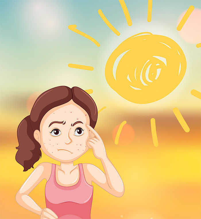 Acne sun dammage